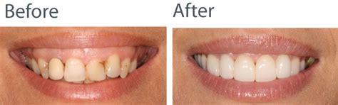 smile by design cerec smile design from nottingham s cerec dental