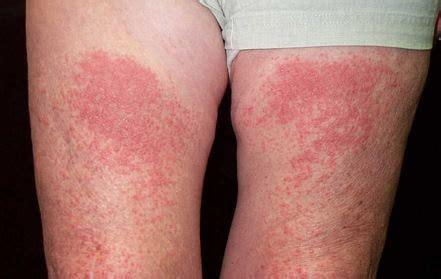 Pmle Images Photodermatitis Treatment Pictures Symptoms Causes