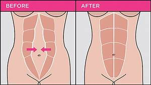 Separated Abdominal Muscles After Pregnancy  Tummy Tuck
