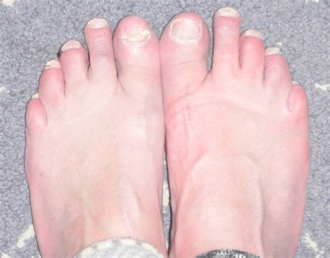 Pin Toes Blisters On Pinterest