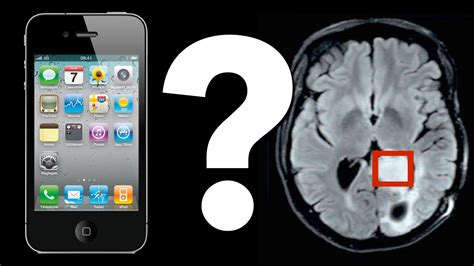 what does phone do cell phones cause brain tumors