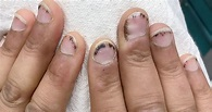 What Are Splinter Hemorrhages? Here's What You Need to ...