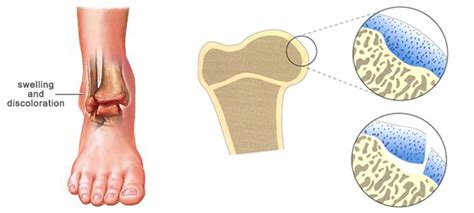 Symptoms of osteochondritis dissecans