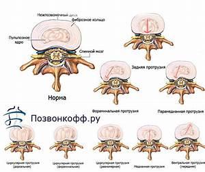Санатории по лечению грыж протрузий позвоночника и остеохондроза