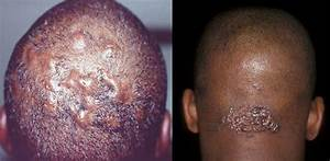 Ingrown Hair On Head Scalp Pictures Symptoms Removal