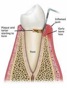 What Is Gingivitis  U0026 Periodontal Disease