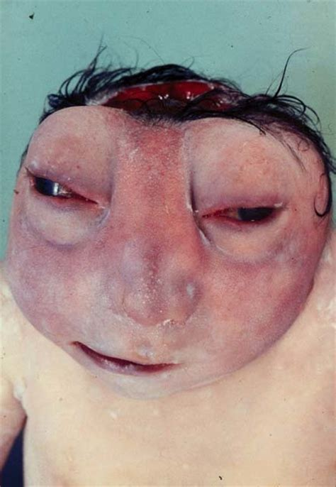 Uso De Cytotec Interrupção Da Gestação De Fetos Anencéfalos