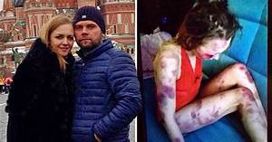 Man Beat Wife Then Showed Pictures To Friends To Boast He Had Her  U0026 39 Under Control U0026 39