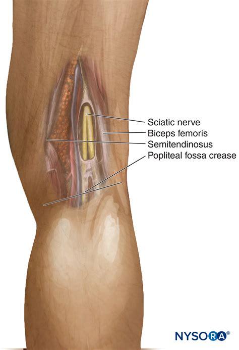 Popliteal Sciatic Nerve Block - Landmarks and Nerve