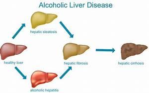Liver Disease Perth