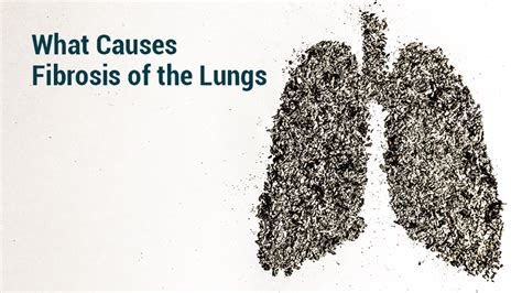 fibrosis   lungs lung institute