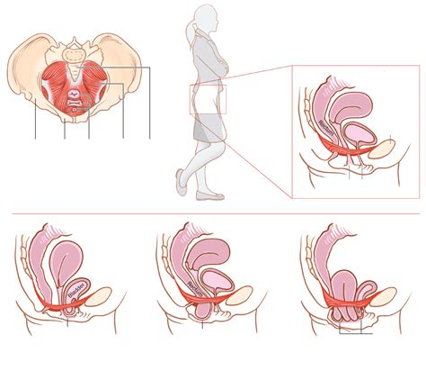 prolapse when the pelvic floor collapses an informative