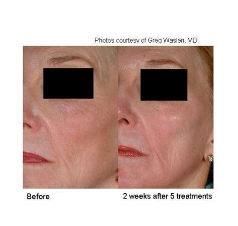 laser genesis  full face cutera
