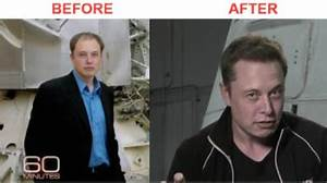 Elon Musk, Congratulations on a Great Hair Transplant…and ...