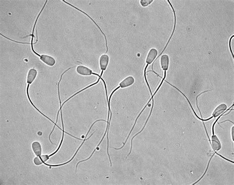 Image result for Bovine semen