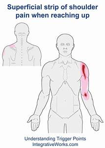 Pain In Front Of Shoulder Reaching Forward