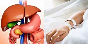 Gallbladder Removal  Here U2019s What To Expect Before  During