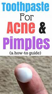 How To Get Rid Of Pimples With Toothpaste
