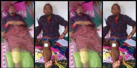 Aborsi Alami Jakarta Timur Tabrakan Usai Manggung Yukie Pas Band Alami Retak Lutut