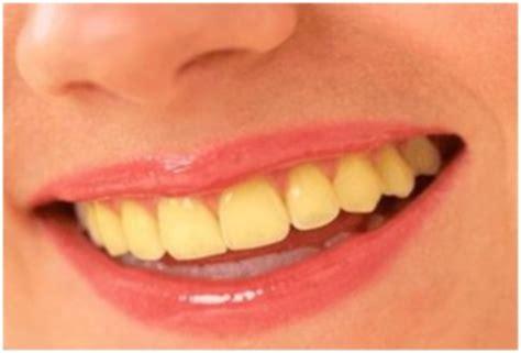 comment avoir les dents blanches tout pratique