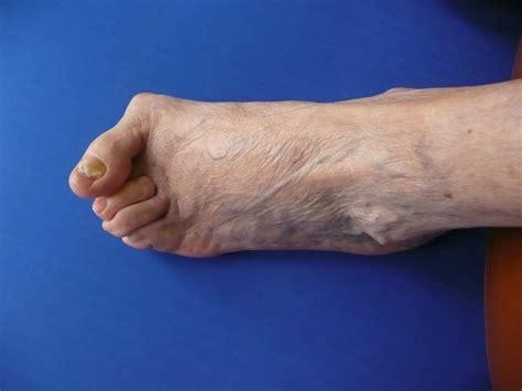 pied de le oignon et orteil marteau clinique podiatrique de l estrie