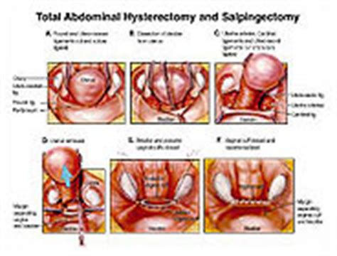 Total Abdominal Hysterectomy and Salpingectomy Medivisuals