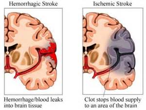 Neurology - Stroke Stroke