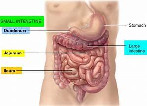 Bowel Obstruction - Small  U0026 Large