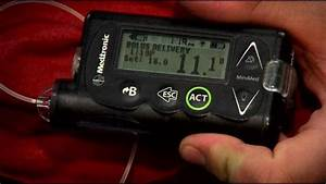 New Insulin Pump Technology Is Helping Type 1 Diabetics