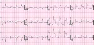 Dr  Smith U0026 39 S Ecg Blog  Is The Lad Really Completely