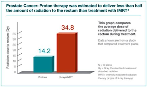 Proton Therapy Chicago by Tumor Treatment Northwestern Medicine Chicago