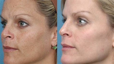week   elos skin rejuvenation   skin