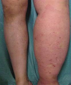 Primary Lower Limb Lymphedema  A Focus On Its Functional
