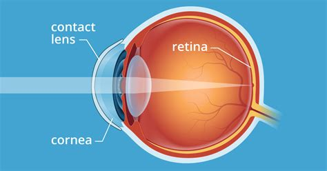 How Contact Lenses Work Allaboutvision