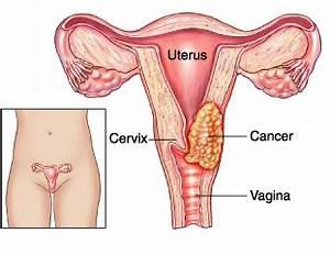 gebärmutterhalskrebs pap 2