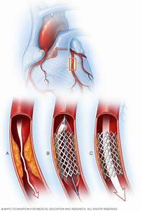 Coronary Artery Disease Disease Reference Guide