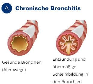 Was ist COPD?  Philips Healthcare