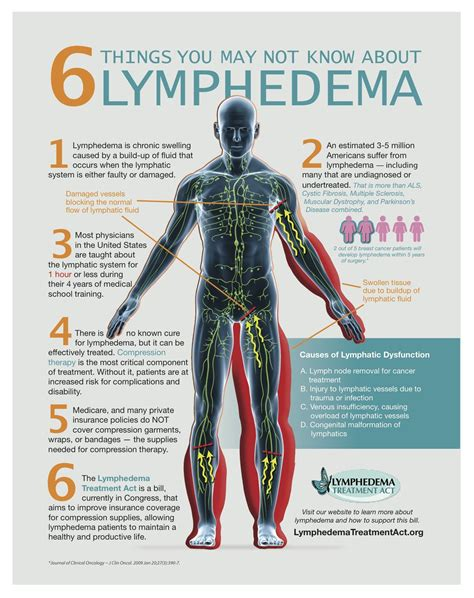 Lymphedema Treatment Act Lymph Edema Lim Fa Dee