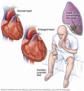 Heart failure Disease Reference Guide - Drugs.com
