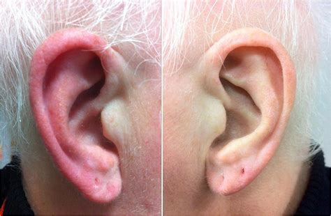 Red Ear Syndrome Wikipedia