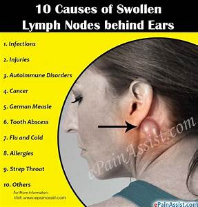 10 Causes Of Swollen Lymph Nodes Behind Ears