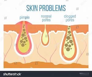 Skin Problems Acne Pimples Clogged Pores Stock