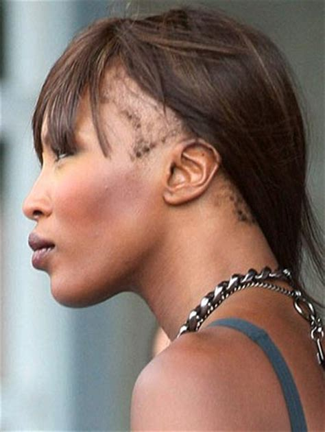 STORY Of Naomi Campbell?s Hair Loss: Traction Alopecia In