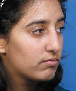 Cosmetic Reshaping Of The Crooked Ethnic Nose
