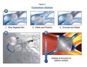 Atrial Fibrillation Ablation Procedure