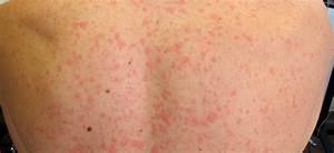 Manchas Rojas En La Piel (Petequias): Causas Y Tratamiento La Guía de las Vitaminas