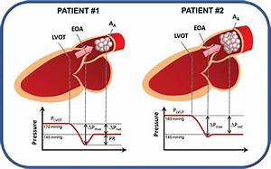 The Phenomenon Of Pressure Recovery In Aortic Stenosis