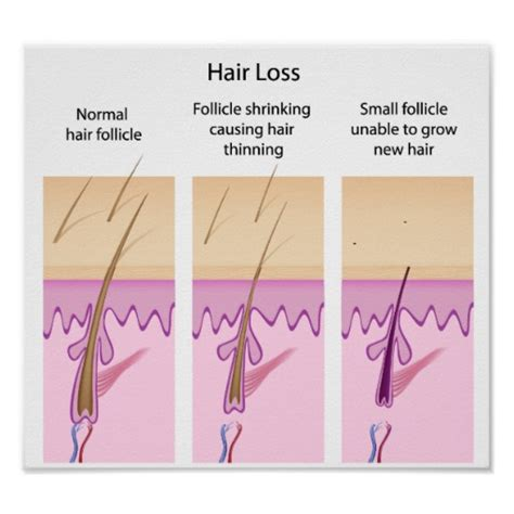 postpartum hair loss how long does it anemia and hair loss is your hair loss due to anemia hair loss process poster zazzle
