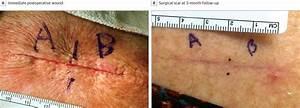 Effect Of Adhesive Strips And Dermal Sutures Vs Dermal