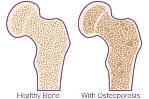Bone Density and Osteoporosis